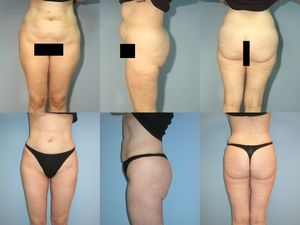 Liposuction -