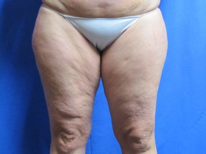 Liposuction - Outer Thighs / Inner Thighs