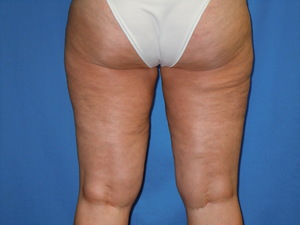 Liposuction - Outer Thighs