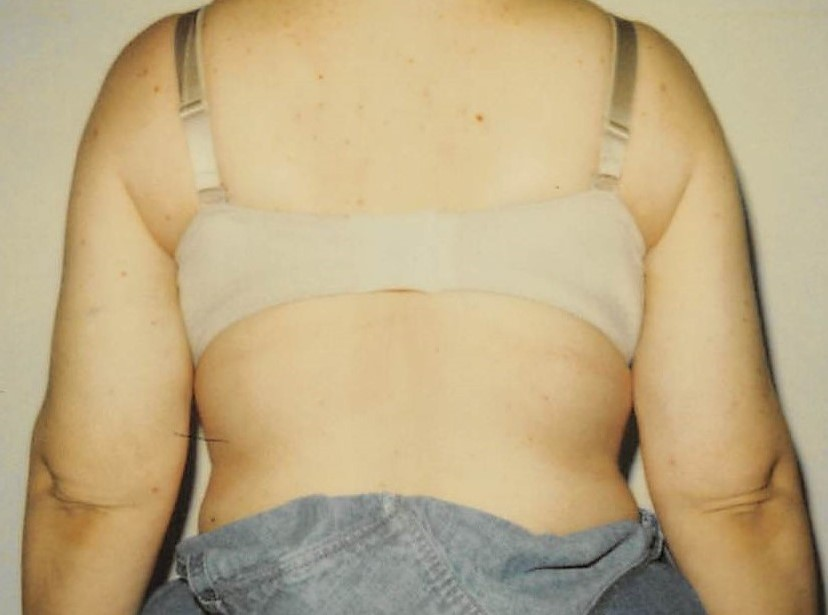 Arms After - Liposuction - Arms