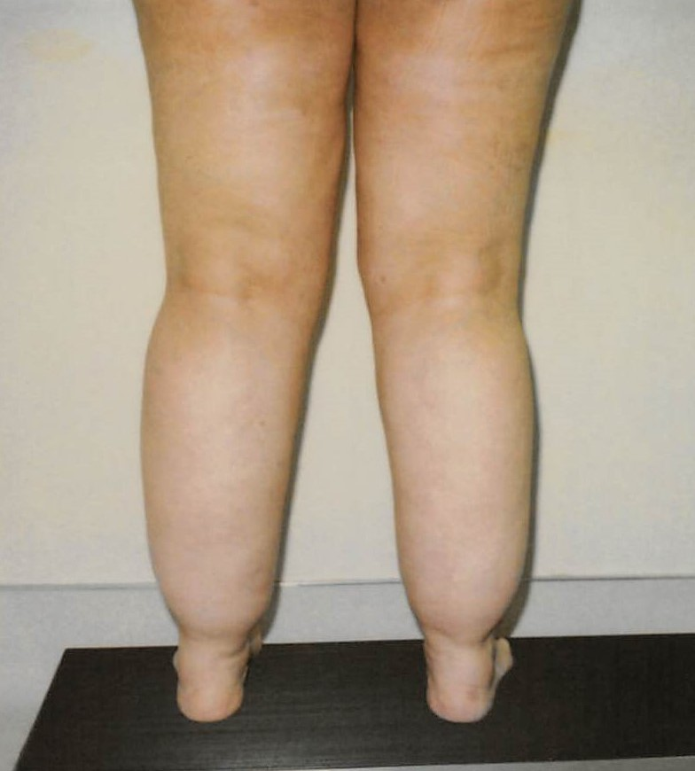 Ankles and Calves Before - Liposuction - Calves / Ankles