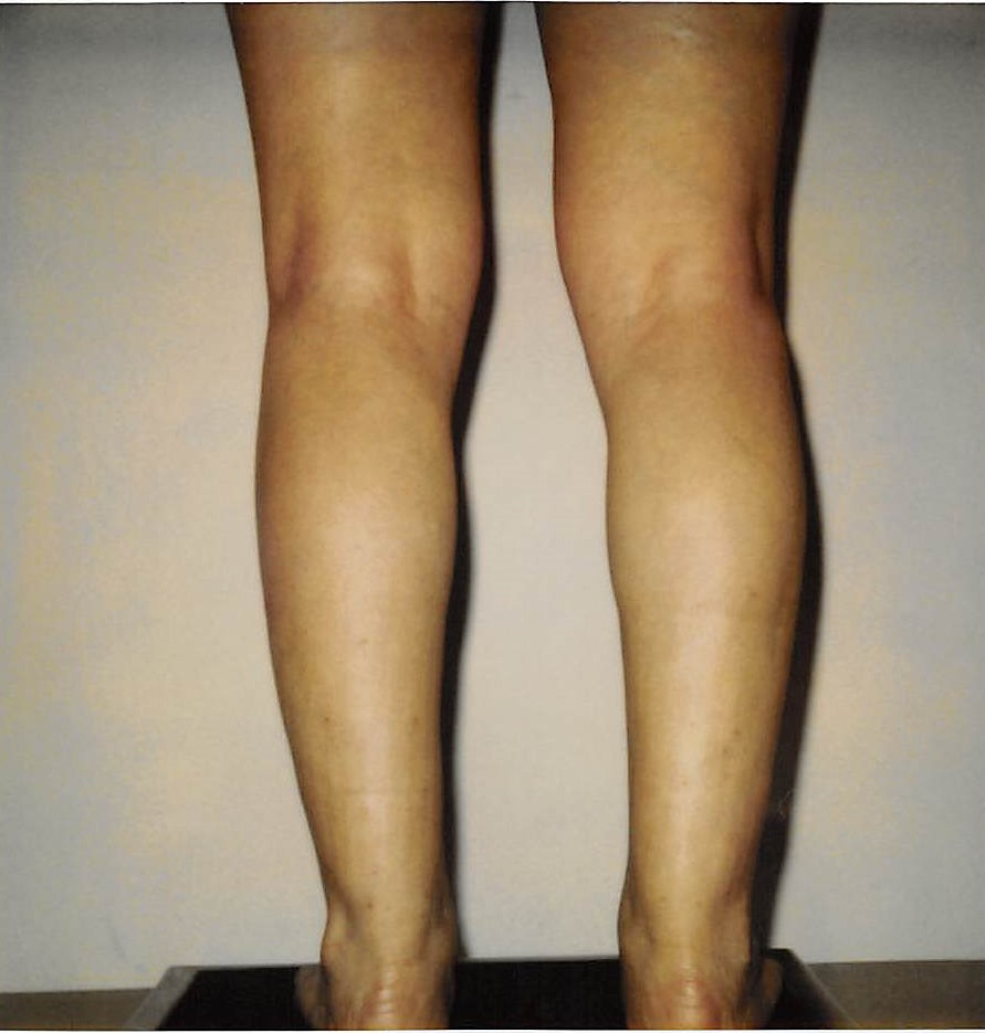 Ankles and Calves After - Liposuction - Calves / Ankles