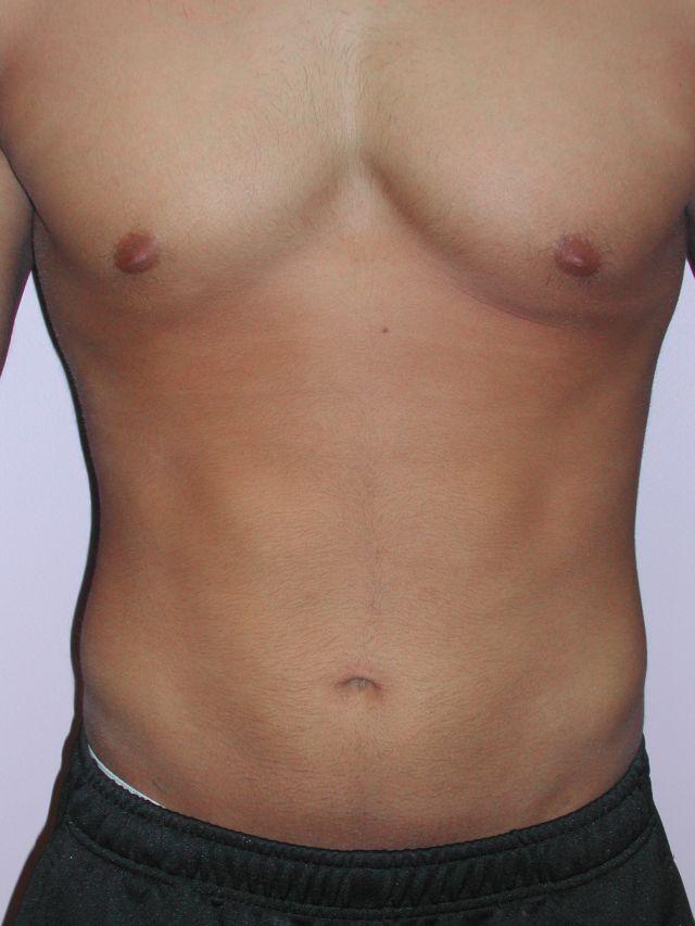 Male Abdomen After - Liposuction - Abdomen