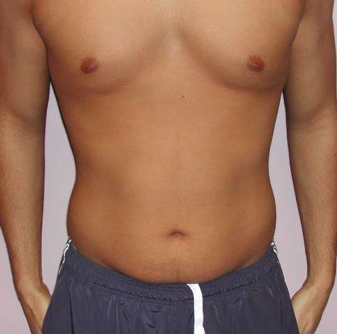 Male Abdomen Before - Liposuction - Abdomen