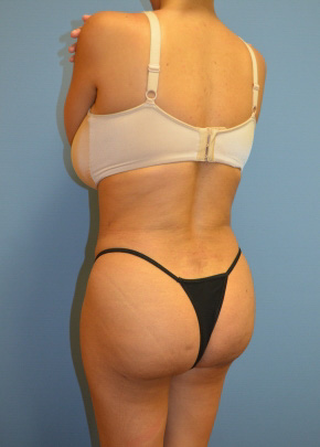 Brazilian Butt Lift After - Liposuction / Brazilian Butt Lift - Waist / Buttocks