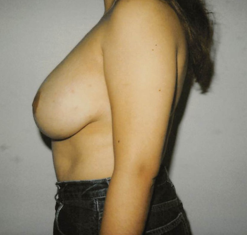 Breasts After - Liposuction - Breasts