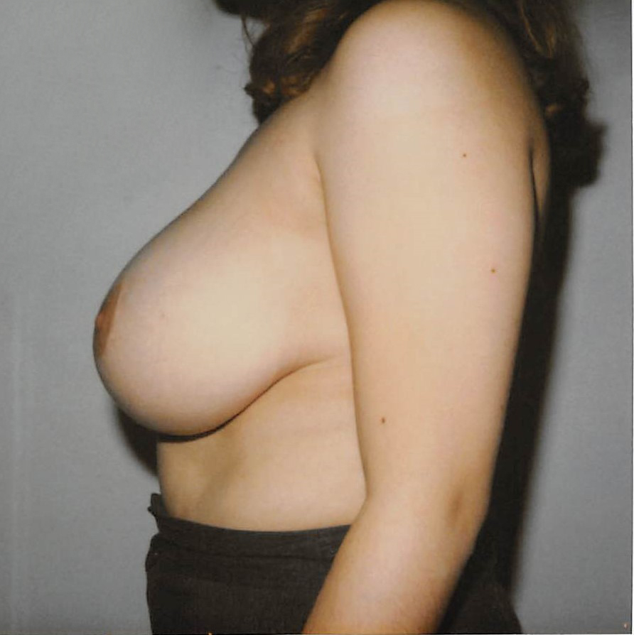 Breasts Before - Liposuction - Breasts