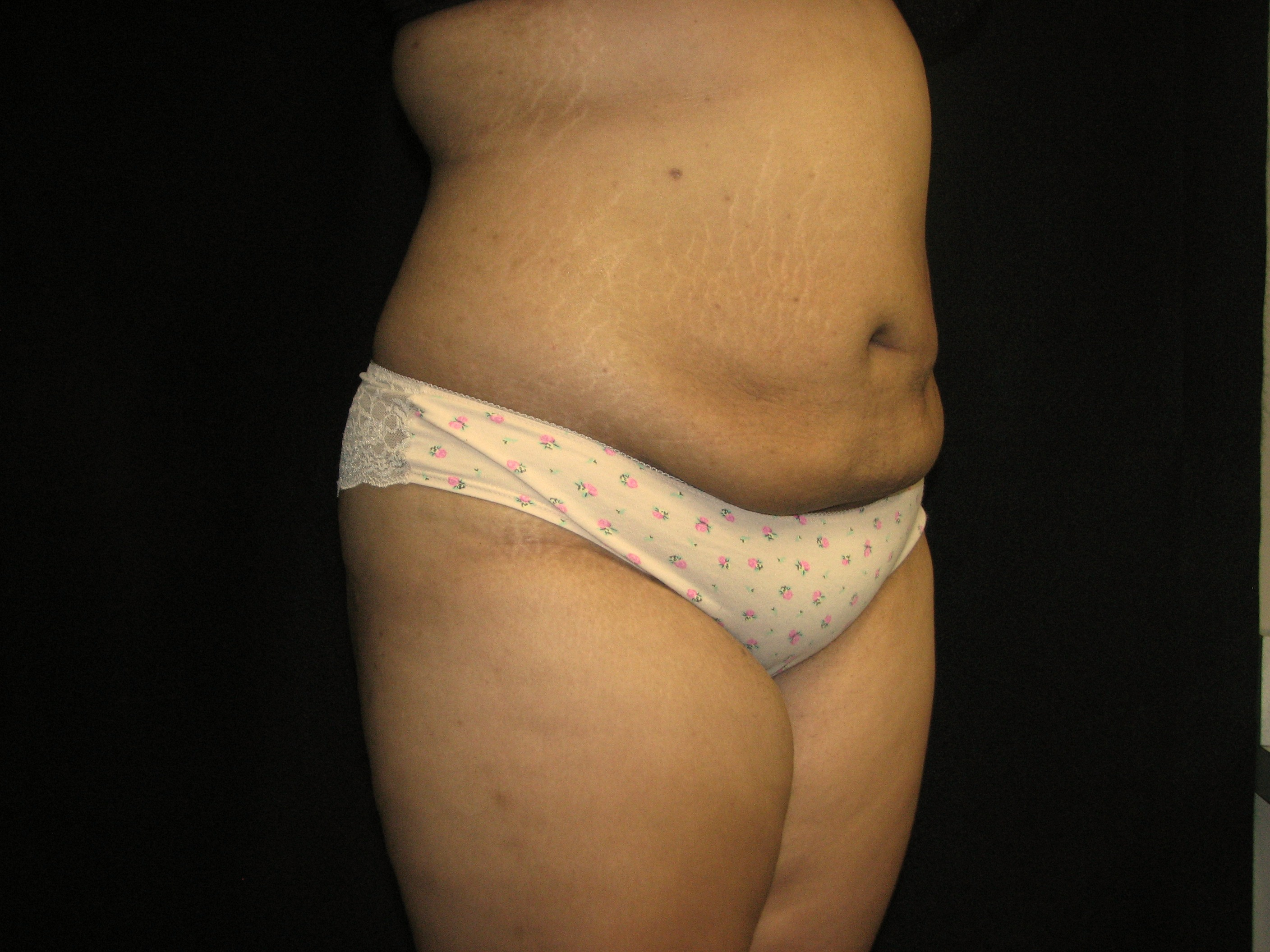 Abdomen After - Liposuction - Abdomen