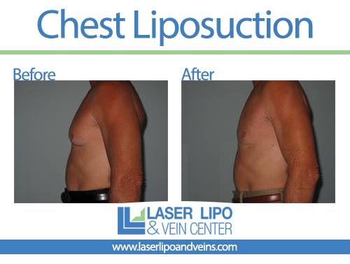 Male Chest Before and After - Liposuction - Breasts
