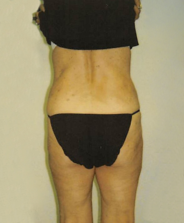 Outer Thighs After - Liposuction - Hips / Outer Thighs