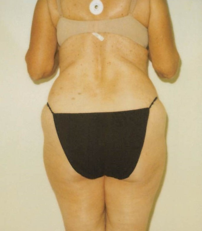 Outer Thighs Before - Liposuction - Hips / Outer Thighs