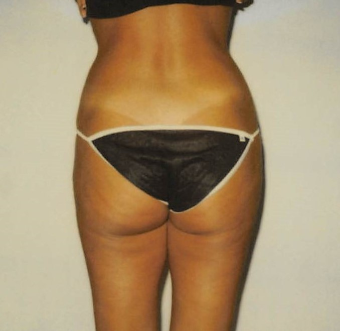 Butt After - Liposuction - Buttocks