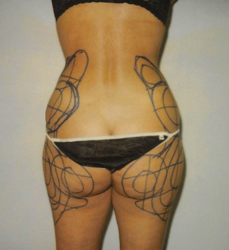 Butt Before - Liposuction - Buttocks