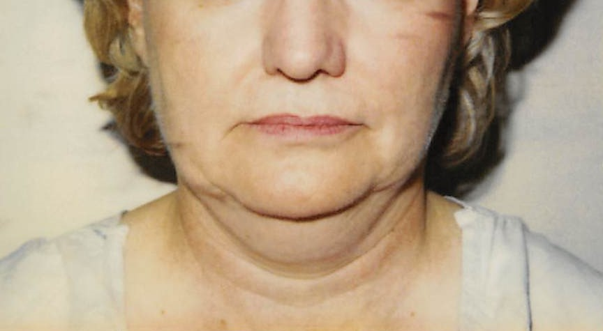Face Before - Liposuction - Face / Neck