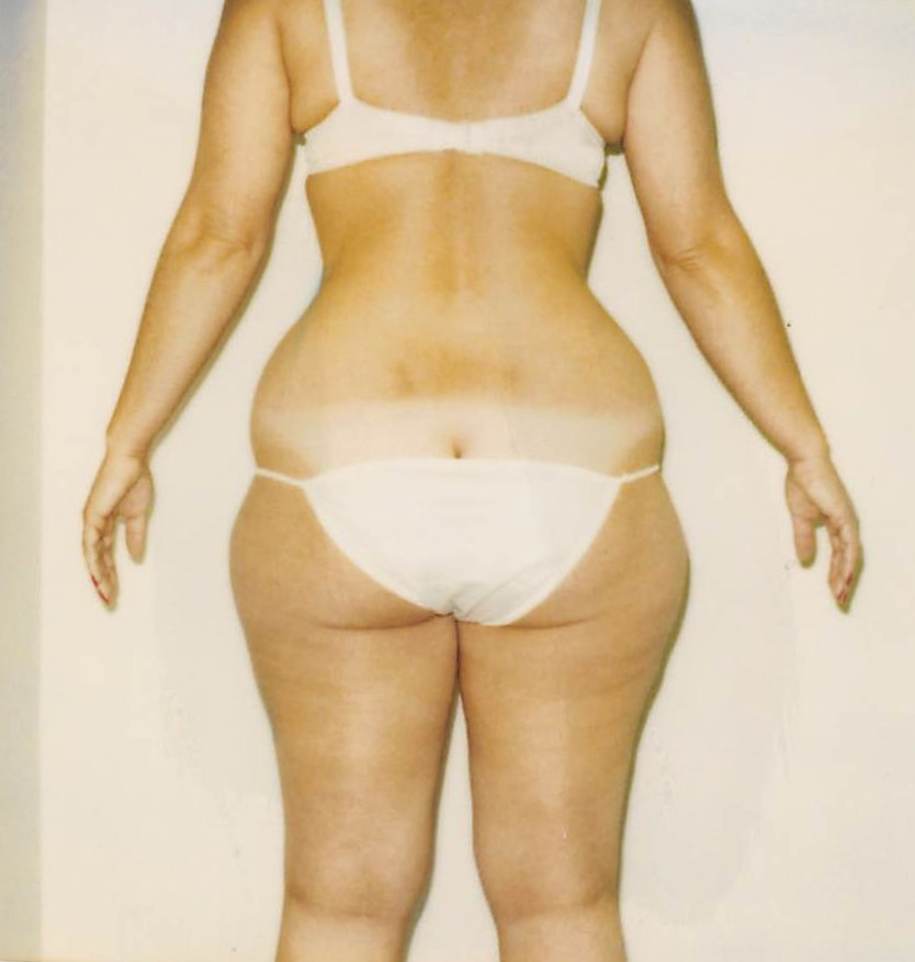 Flanks Before - Liposuction - Flanks