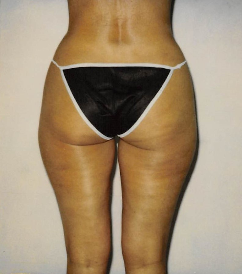 Inner Thigh Before - Liposuction - Inner Knees / Inner Thighs