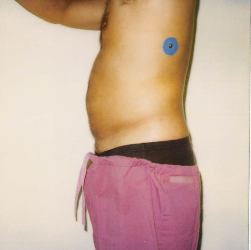 Male Abdomen Before - Liposuction - Abdomen
