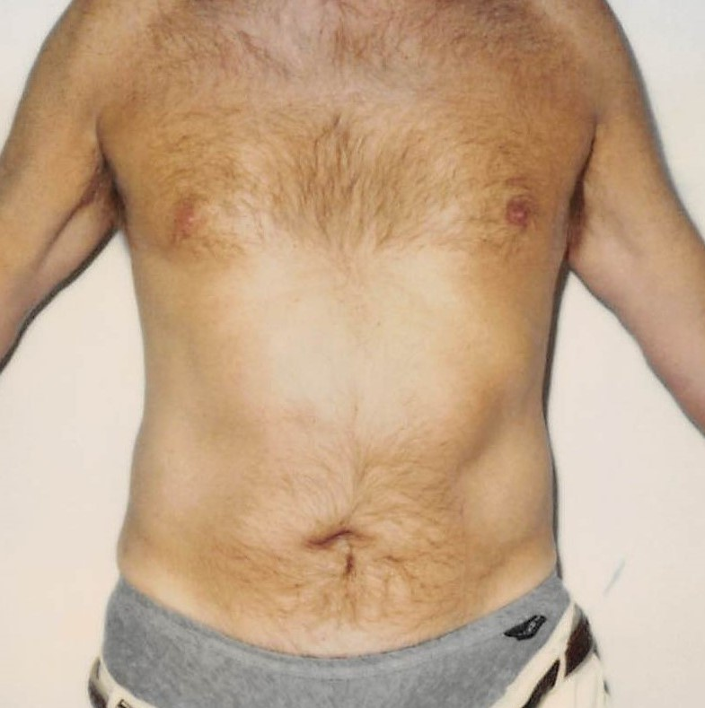 Male Abdomen After - Liposuction - Abdomen