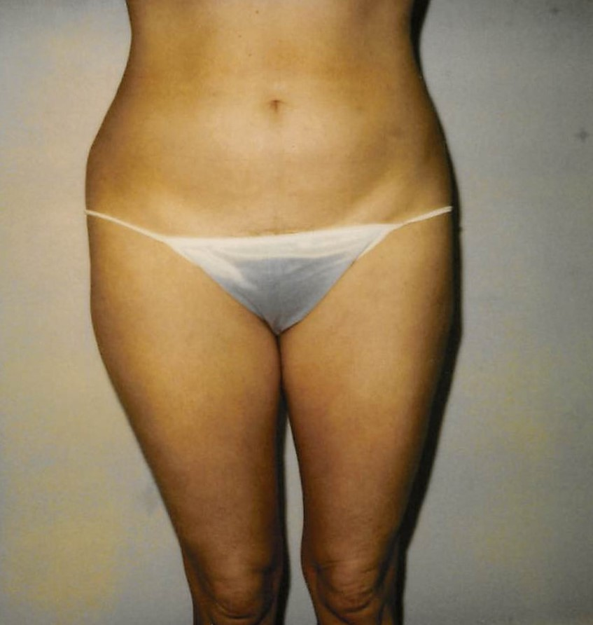 Waist and Hips Before - Liposuction - Waist / Hips