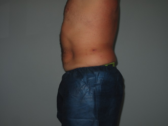 Abdomen & Flanks Before - Liposuction - Abdomen / Flanks