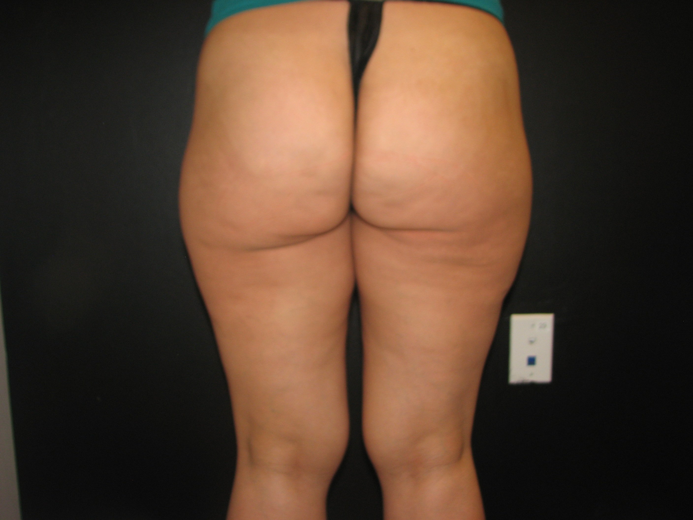 Thighs Before - Liposuction - Outer Thighs / Anterior Thighs / Inner Thighs