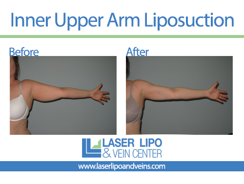 Inner Arm Liposuction Before and After - Liposuction - Arms