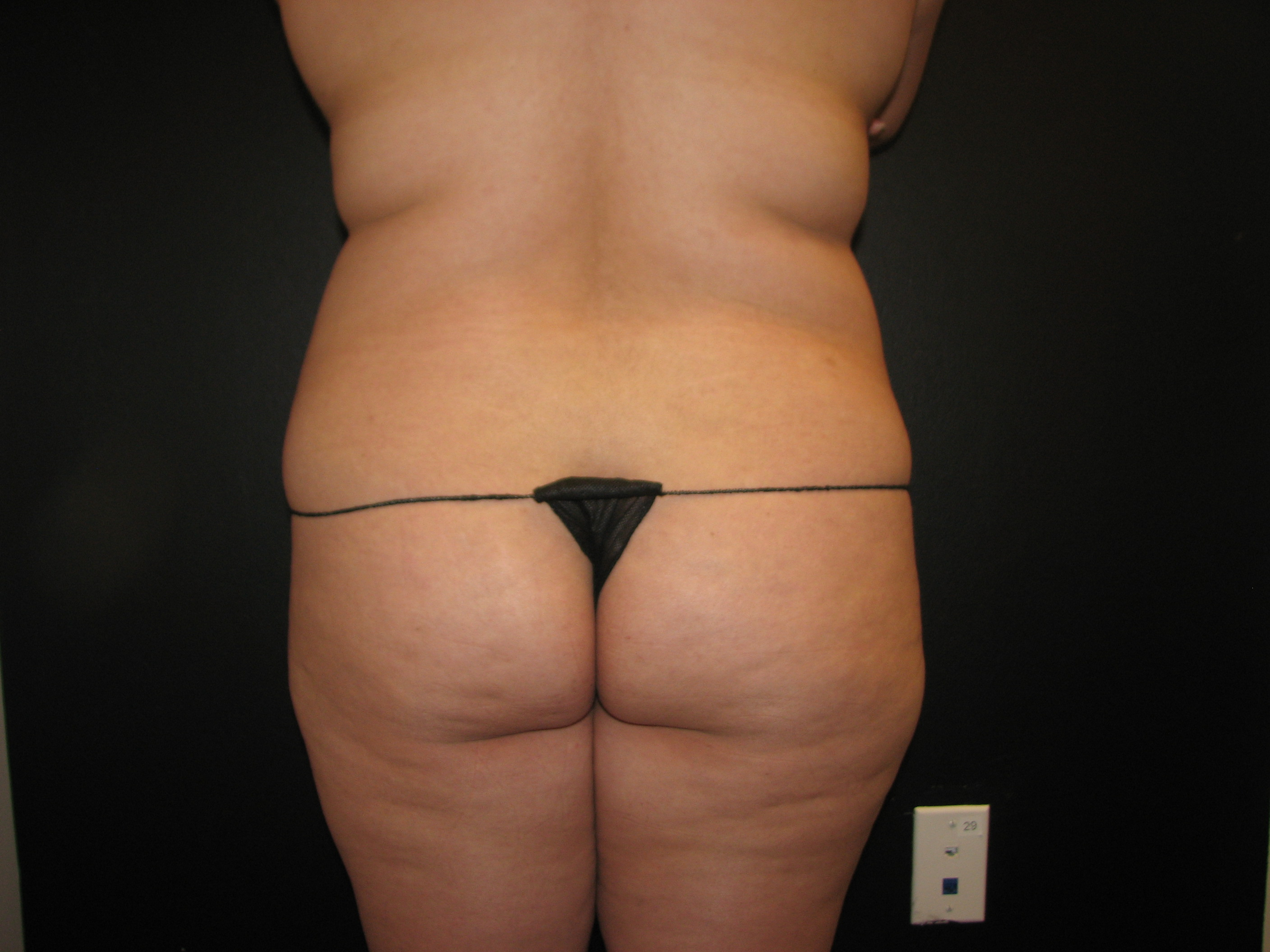 Brazilian Butt Lift Before - Brazilian Butt Lift - Waist / Hips / Buttocks