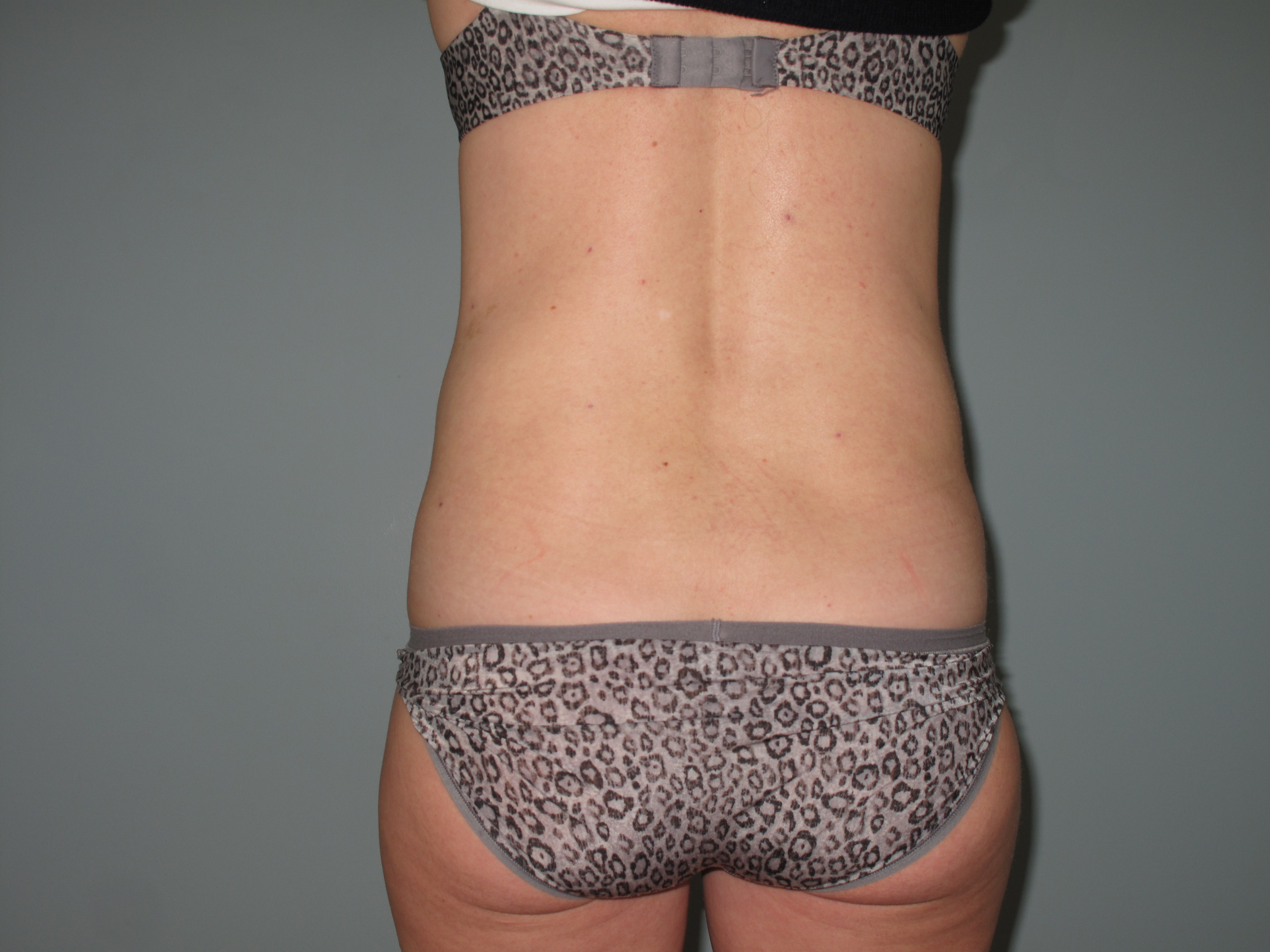 Back & Flanks After - Liposuction - Back / Flanks