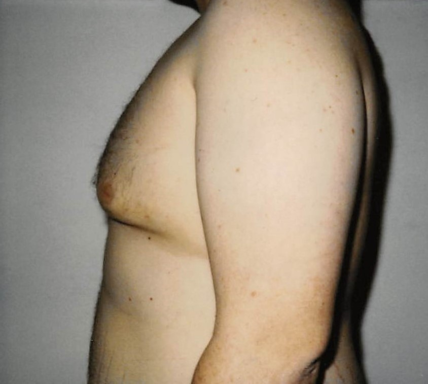 Male Breasts After - Liposuction - Breasts