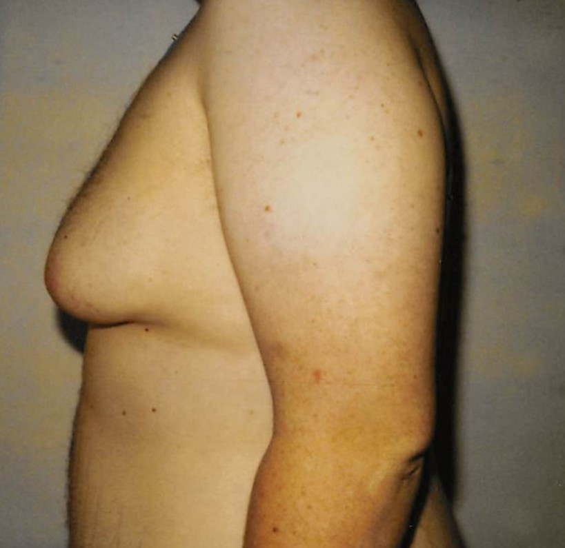 Male Breasts Before - Liposuction - Breasts