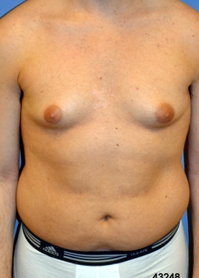 Male Breast Before - Liposuction - Breasts