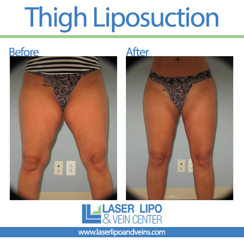 Inner Thighs Before and After - Liposuction - Inner Thighs