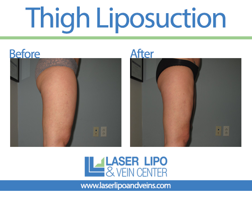 Outer Thighs Before and After - Liposuction - Outer Thighs
