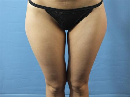 Inner and Outer Thighs Before - Liposuction - Outer Thighs / Inner Thighs