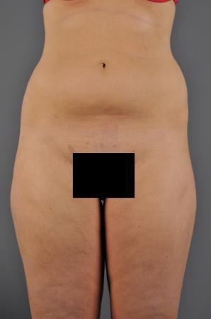 Abdomen Before - Abdomen / Liposuction - Abdomen