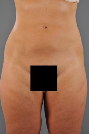 Abdomen After - Abdomen / Liposuction - Abdomen