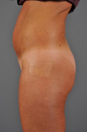 Abdomen Before - Liposuction - Abdomen