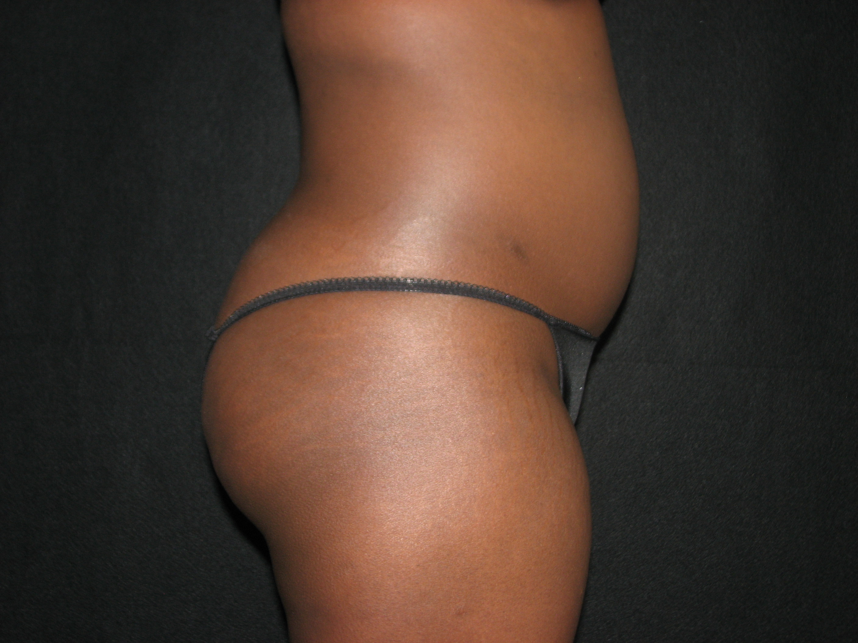 Abdomen Before - Liposuction - Abdomen