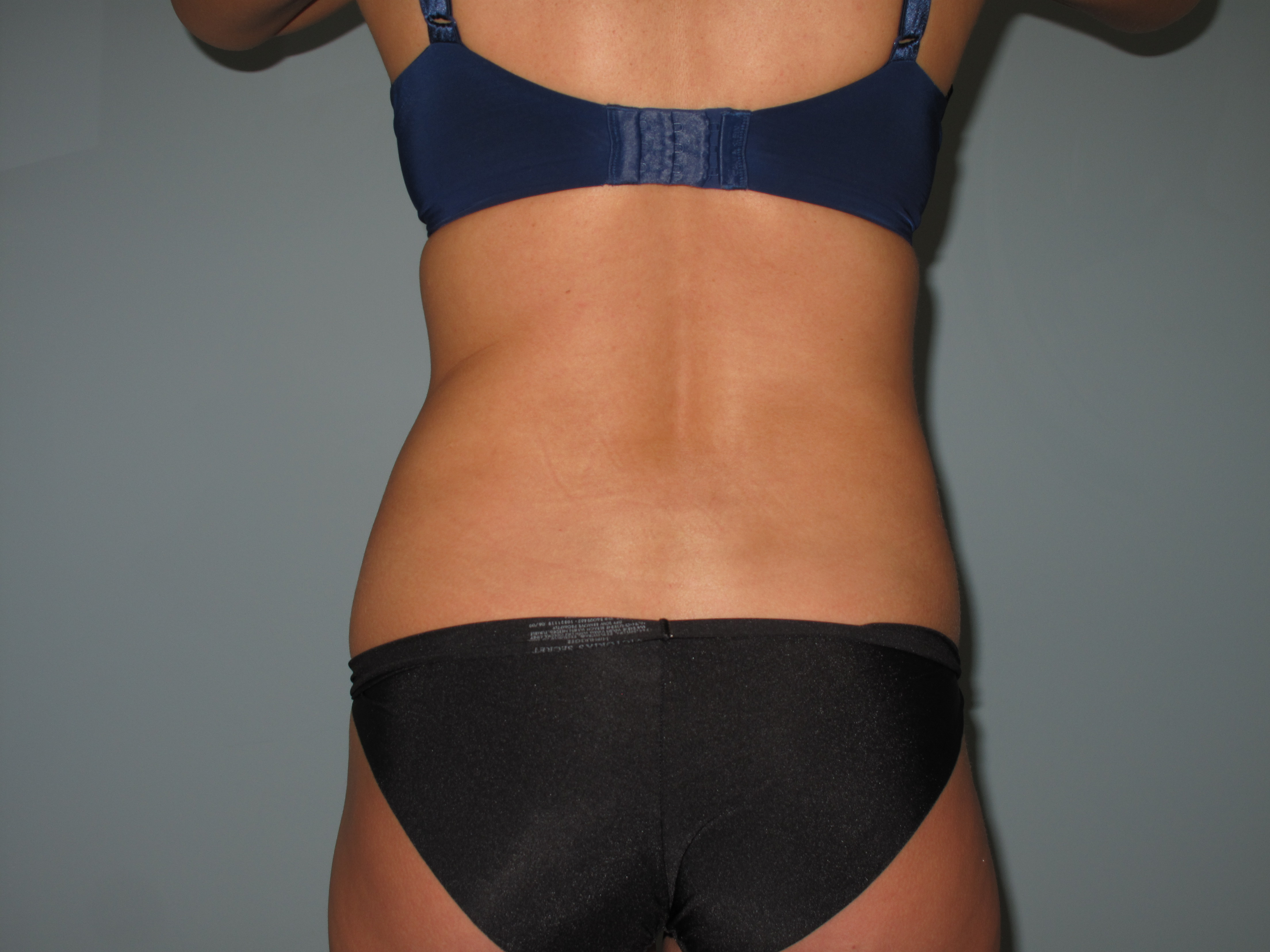 Back & Flanks Before - Liposuction - Back / Flanks