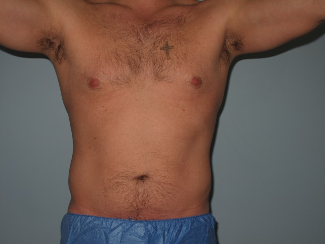 Abdomen & Flanks After - Liposuction - Abdomen / Flanks