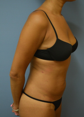 Abdomen After - Liposuction - Abdomen / Waist