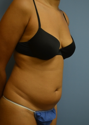 Abdomen Before - Liposuction - Abdomen / Waist