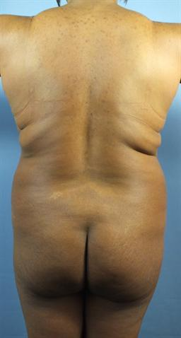 Back and Buttocks Before - Liposuction / Brazilian Butt Lift - Back / Buttocks