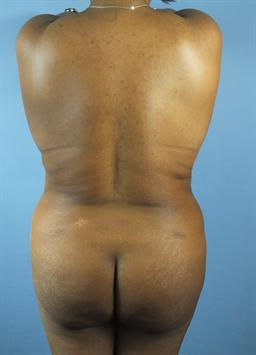 Back and Buttocks After - Liposuction / Brazilian Butt Lift - Back / Buttocks