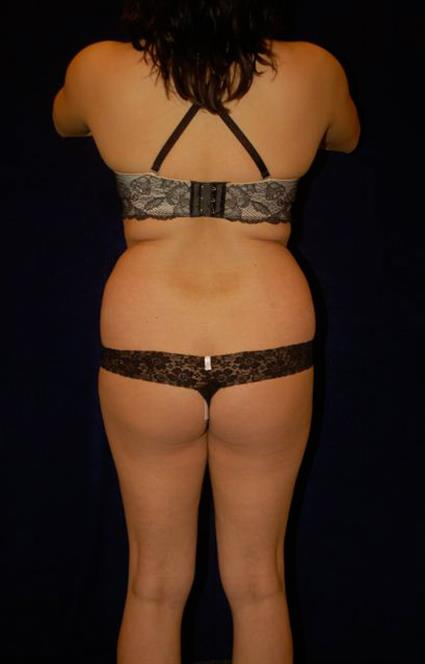 Liposuction - Waist / Hips / Flanks