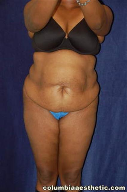 Before - Abdomen / Liposuction - Abdomen / Waist / Hips