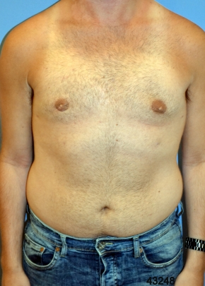 Male Breast After - Liposuction - Breasts