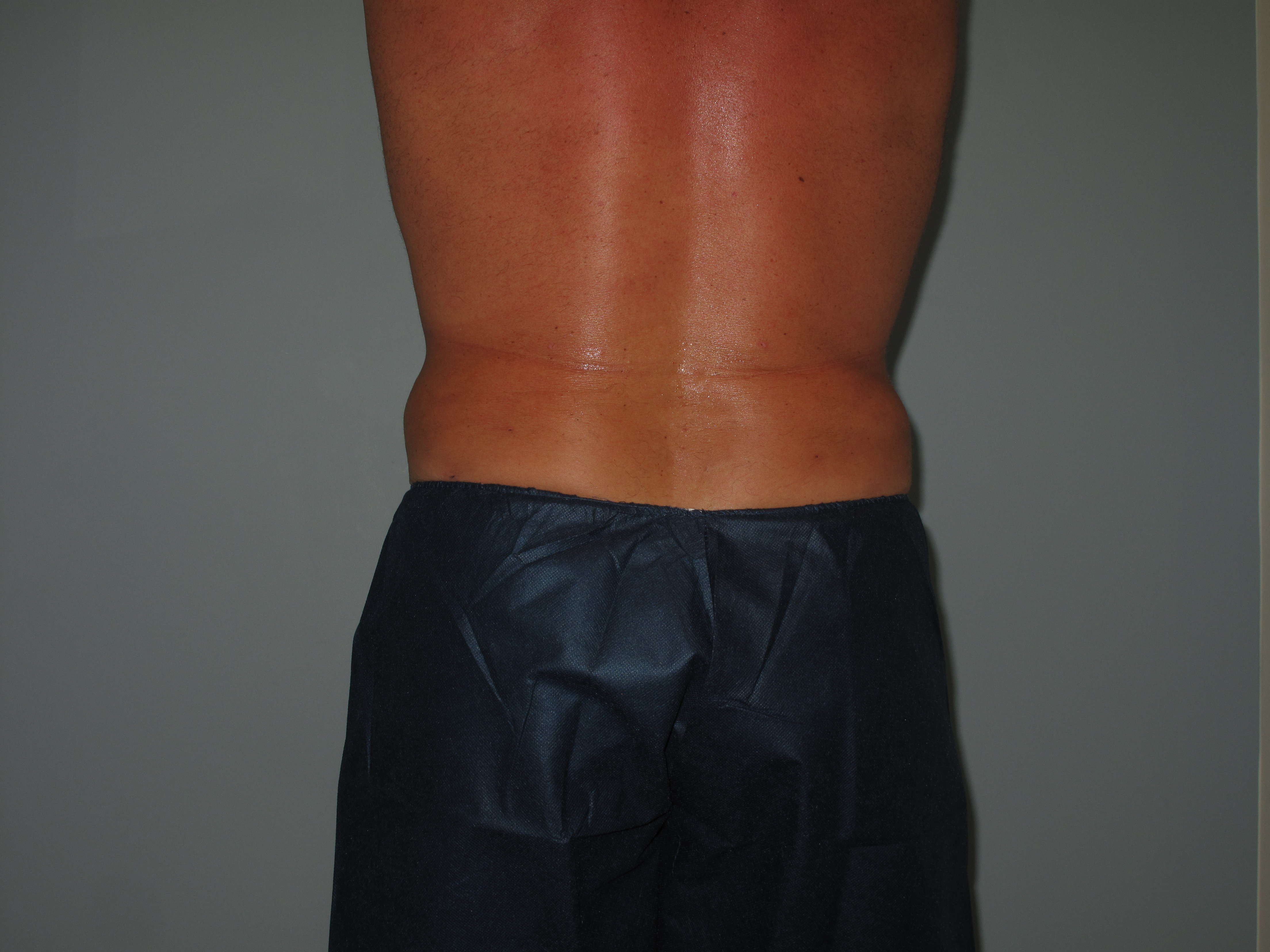 Male Flanks After  - Liposuction - Flanks