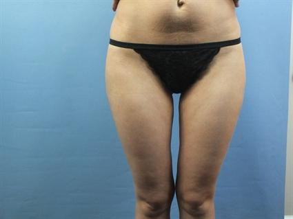 Inner and Outer Thighs After - Liposuction - Outer Thighs / Inner Thighs