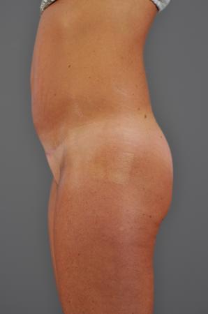 Abdomen After - Liposuction - Abdomen